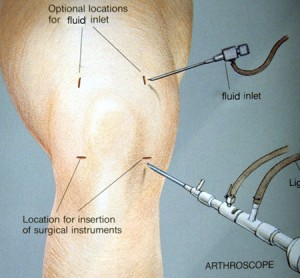 meniscus tear knee symptoms and treatment