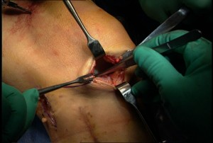meniscus tear surgery operation