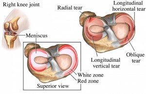meniscus tear knee injury